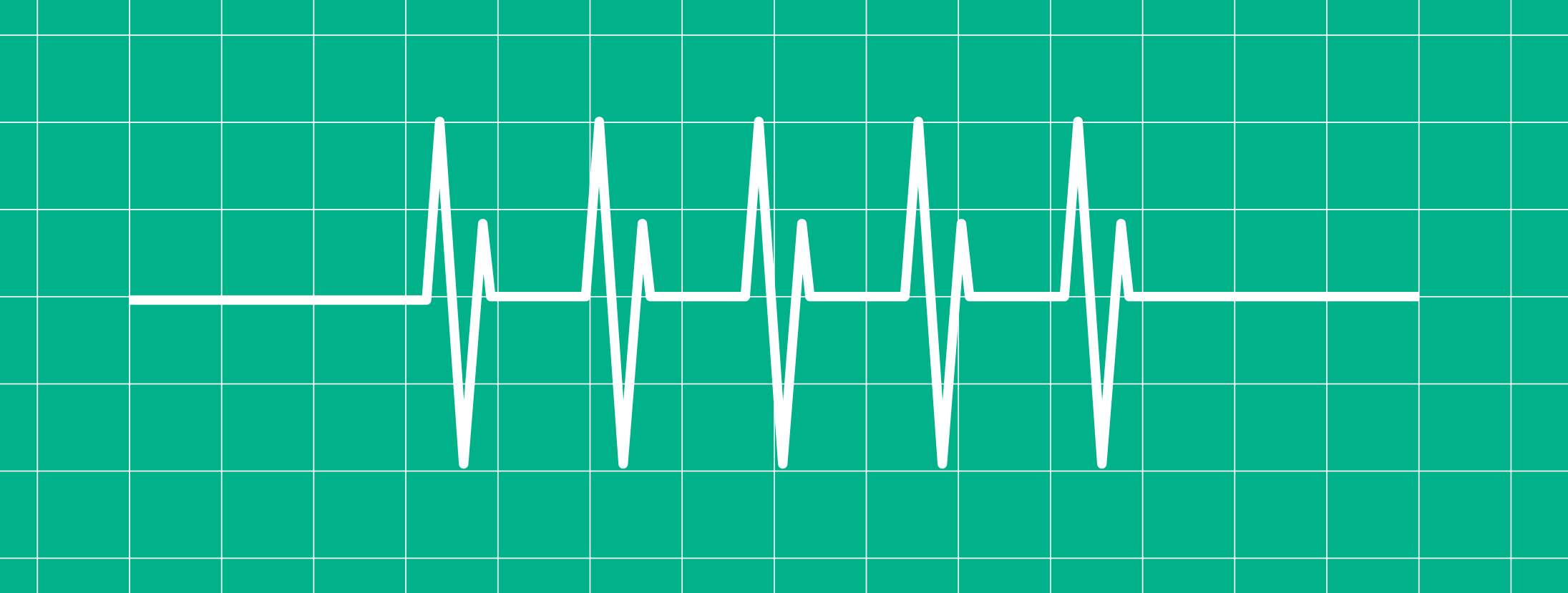What's in a Heart Beat?